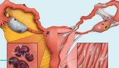 盆腔炎会影响月经吗?有哪些影响