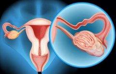 卵巢早衰怎么怀孕
